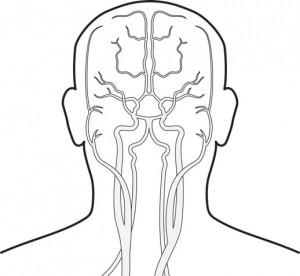 stroke-event