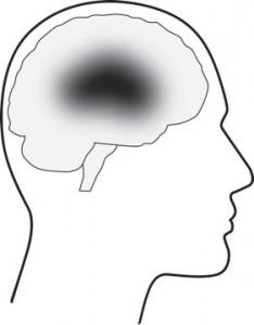types-of-stroke-1